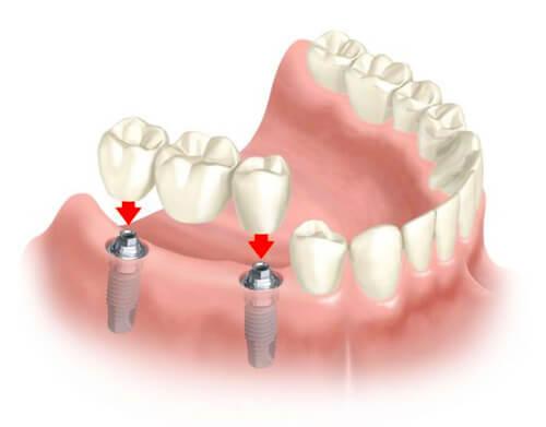 bridge-implant