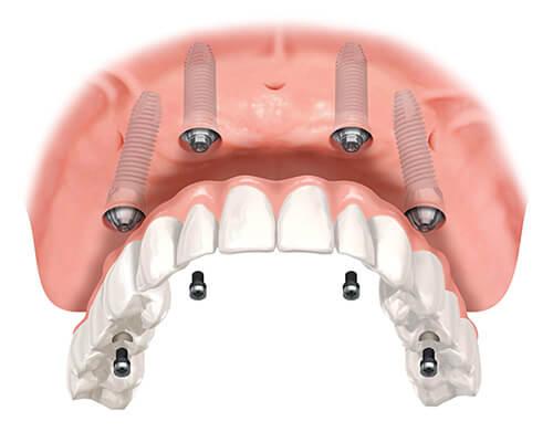 restauracion-oral
