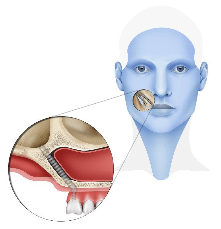 Zygomatic-Implants