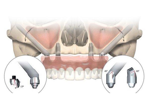 implantes-zigomaticos