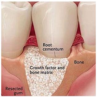 guided-bone-graft