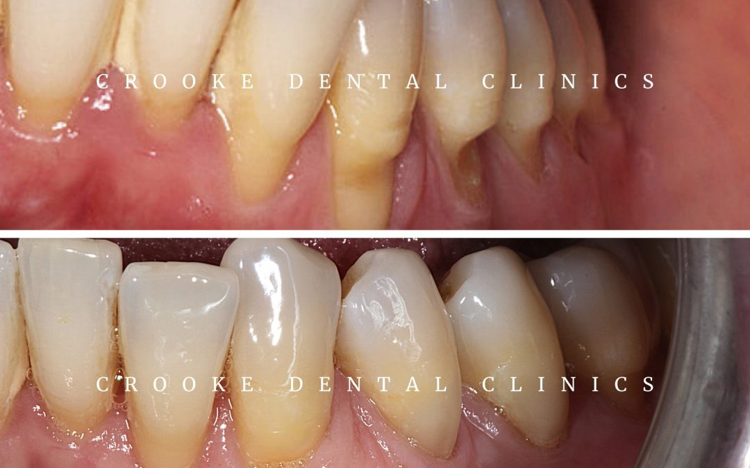 All you should know about Gum Grafting