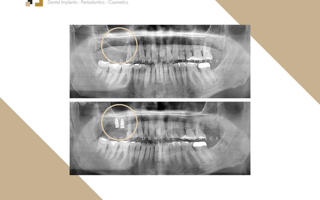 Elevación de seno y colocación de dos implantes