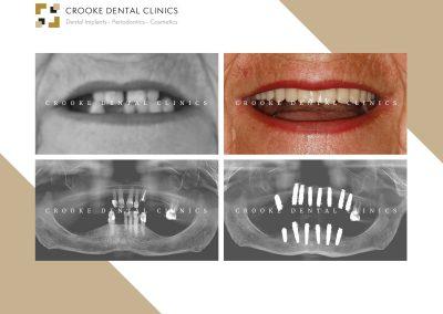 Rehabilitación dientes fijos en Peek composite con implantes