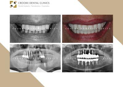 Rehabilitación dientes fijos en zirconio con implantes