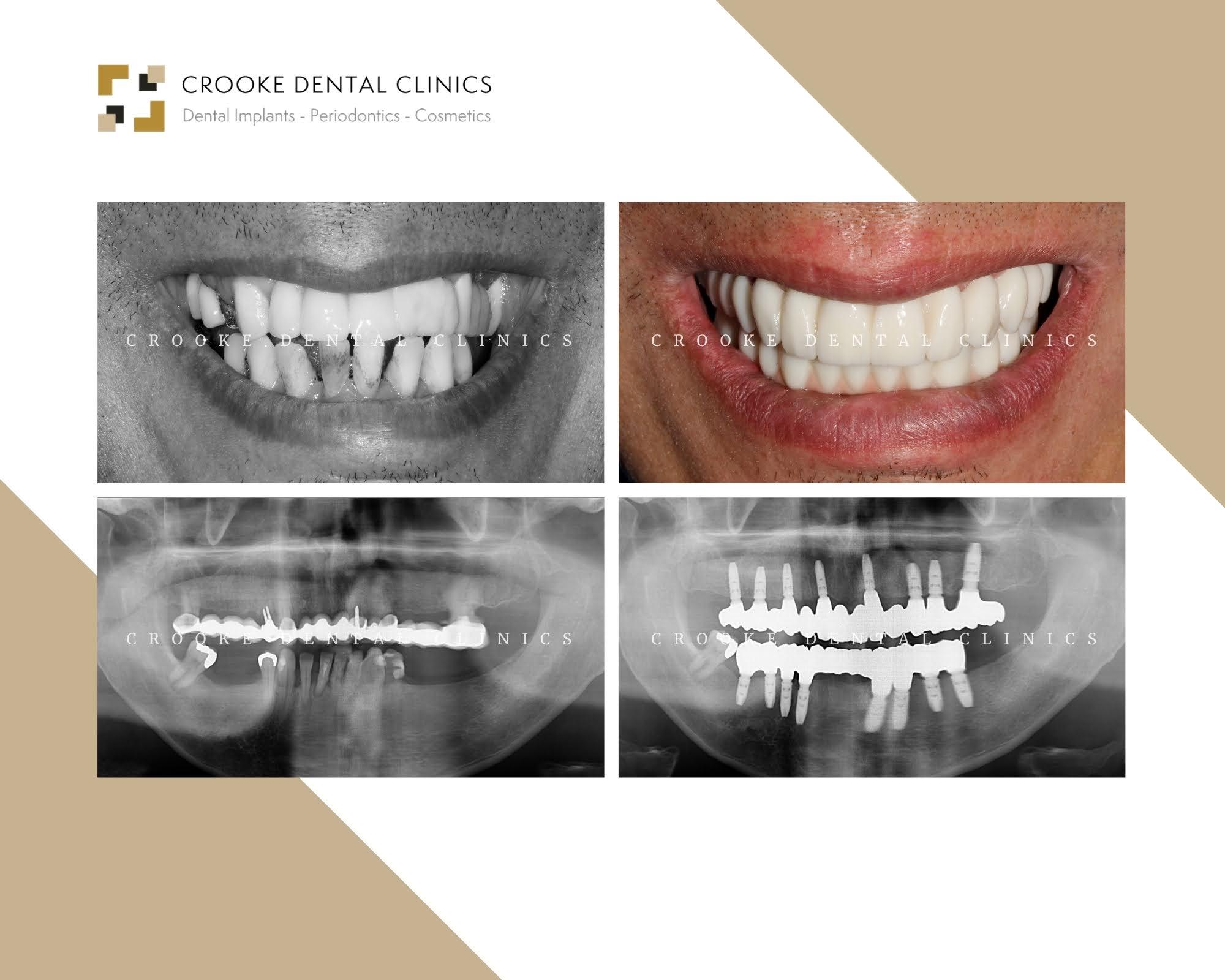 Rehabilitación dientes fijos en zirconio con implantes (5)