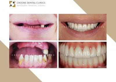 Rehabilitación dientes fijos en zirconio con implantes y all on four inferior