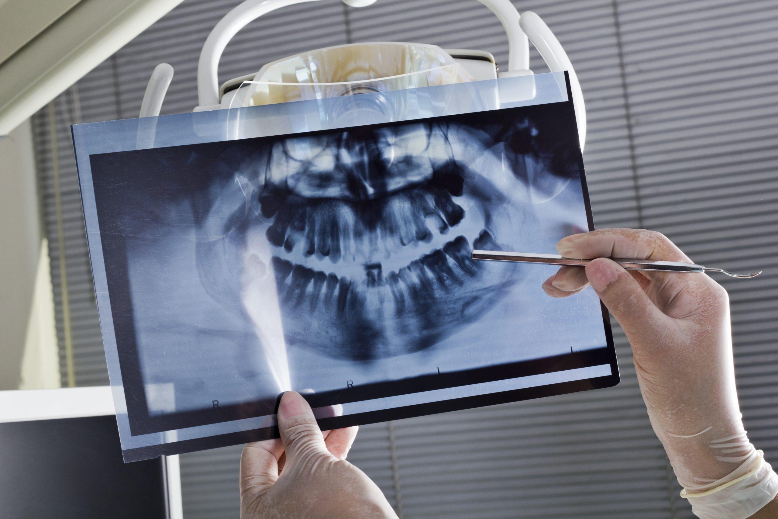radiografia dental implantes cigomaticos