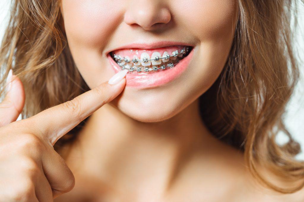 aparato brackets para los dientes