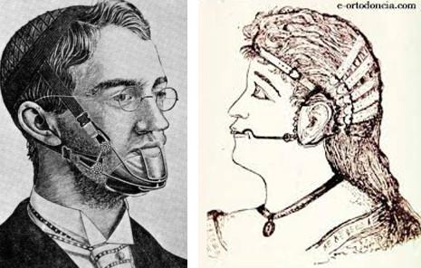 primera ortodoncia de la historia