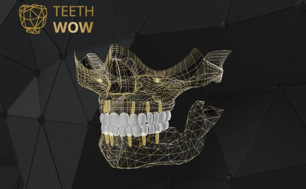 Descubre TeethWow, la nueva rehabilitación oral que hará brillar tu sonrisa.