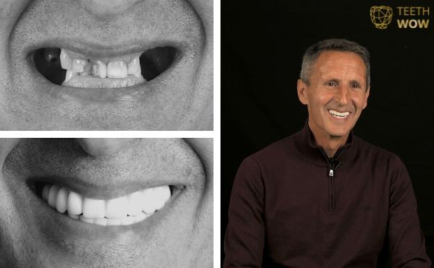 teeth wow testimoniales
